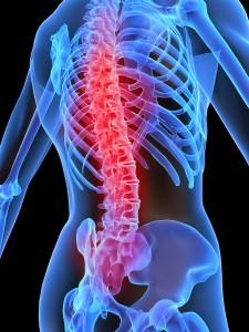 Pettibon System Chiropractic